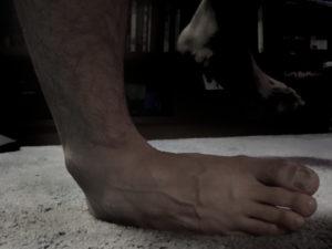 distorsione caviglia milano inversione