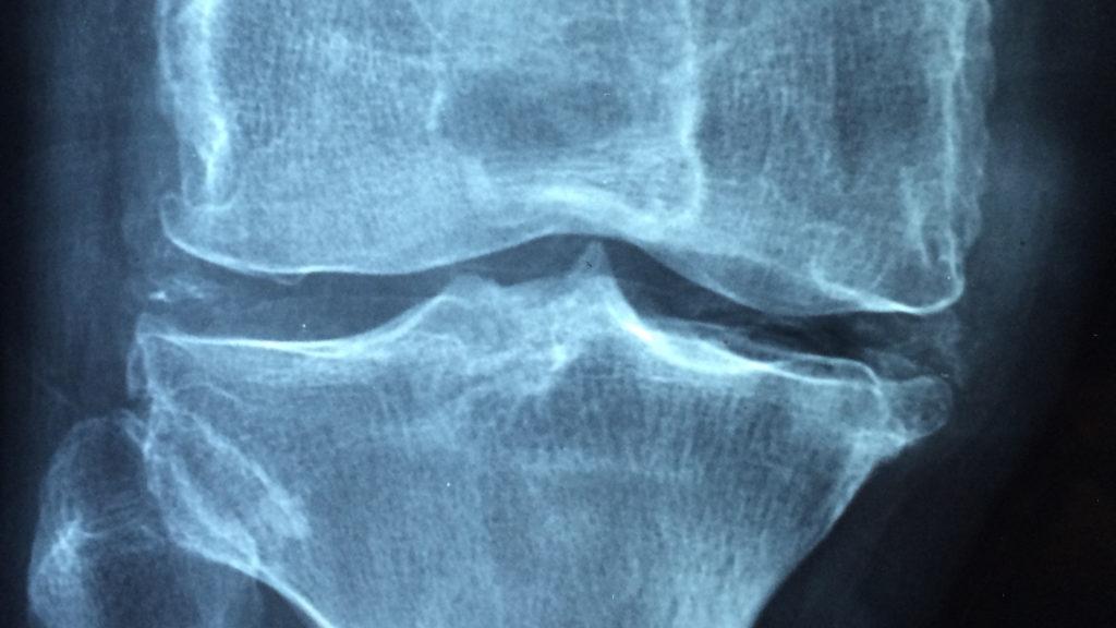 lesione menischi milano
